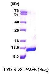 NBP1-44453 - DBI / ACBP