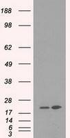 NBP1-47727 - DHFR / DHFRP1
