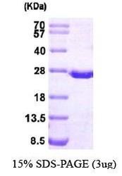 NBP1-30207 - DHFR / DHFRP1