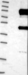 NBP1-87550 - Dishevelled-2 / DVL2