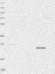 NBP1-85929 - DLX6
