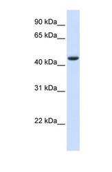 NBP1-53132 - DNMT2 / TRDMT1