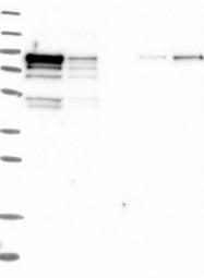 NBP1-85961 - DNMT3A