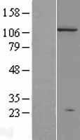 NBL1-09970 - Dnmt3a Lysate