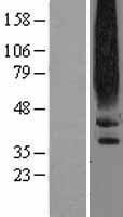 NBL1-10016 - Dopamine D2 Receptor Lysate