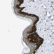NBP1-87577 - Dopamine D1 receptor