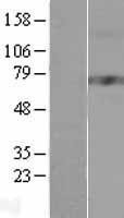 NBL1-09727 - Dopamine beta Hydroxylase Lysate