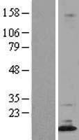 NBL1-10004 - Dppa5 Lysate
