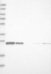 NBP1-80616 - Dynactin subunit 6