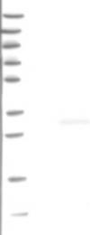 NBP1-80617 - Dynactin subunit 6