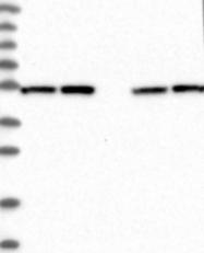 NBP1-85278 - Dynactin subunit 2