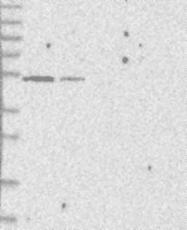 NBP1-82643 - DYRK1B