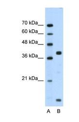 NBP1-59137 - Dysadherin / FXYD5