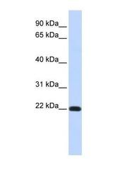 NBP1-59138 - Dysadherin / FXYD5