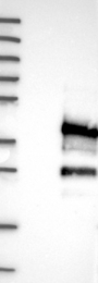 NBP1-82486 - Dysadherin / FXYD5