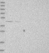NBP1-85299 - Dysbindin