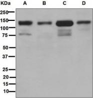 NBP1-96026 - CD324 / Cadherin-1