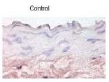 NBP1-45545 - CD62E / E-Selectin
