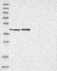 NBP1-89704 - ERAL1 / HERA