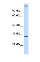 NBP1-56921 - ALKBH2 / ABH2