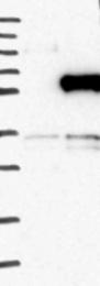 NBP1-87155 - E2F1