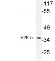 NBP1-51239 - E2F5