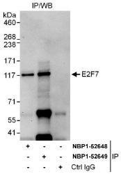 NBP1-52648 - E2F7