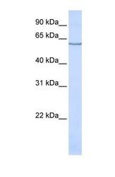 NBP1-62519 - SLC1A1