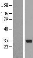 NBL1-12893 - MAPRE3 Lysate