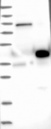 NBP1-84922 - EBAG9 / RCAS1