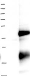 NBP1-84923 - EBAG9 / RCAS1