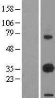 NBL1-10090 - EBAG9 / RCAS1 Lysate