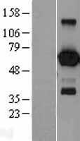 NBL1-10091 - EBF1 Lysate