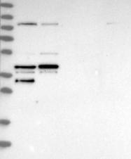 NBP1-84022 - EBNA1BP2