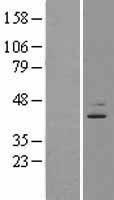 NBL1-10093 - EBNA1BP2 Lysate