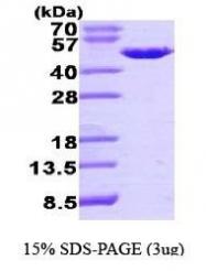 NBP1-44474 - PA2G4 / EBP1