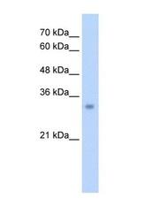 NBP1-54738 - ECH1