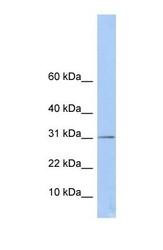 NBP1-53053 - ECHDC1