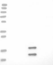 NBP1-83802 - ECHDC2