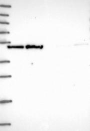 NBP1-91858 - ECSIT