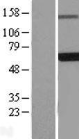 NBL1-10108 - EDC3 Lysate