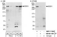 NBP1-71802 - UBR5 / HYD