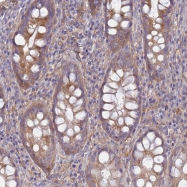 NBP1-91859 - Early endosome antigen 1