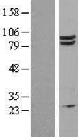 NBL1-10128 - EEF2K Lysate