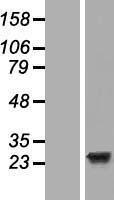 NBL1-10129 - EFCAB1 Lysate