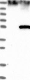 NBP1-83555 - EFCAB3