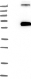 NBP1-84724 - Fibulin-4