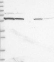NBP1-82061 - EFHB