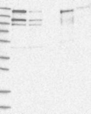 NBP1-93614 - EHBP1