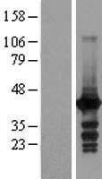 NBL1-13065 - EI2BL Lysate